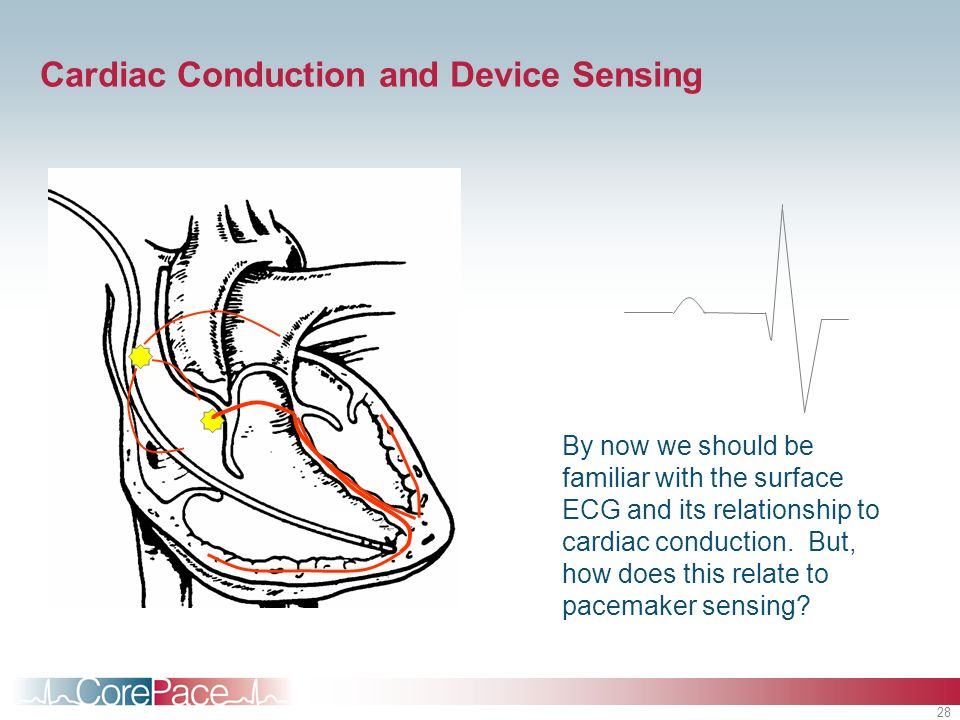 Cardiac Conduction and Device Sensing