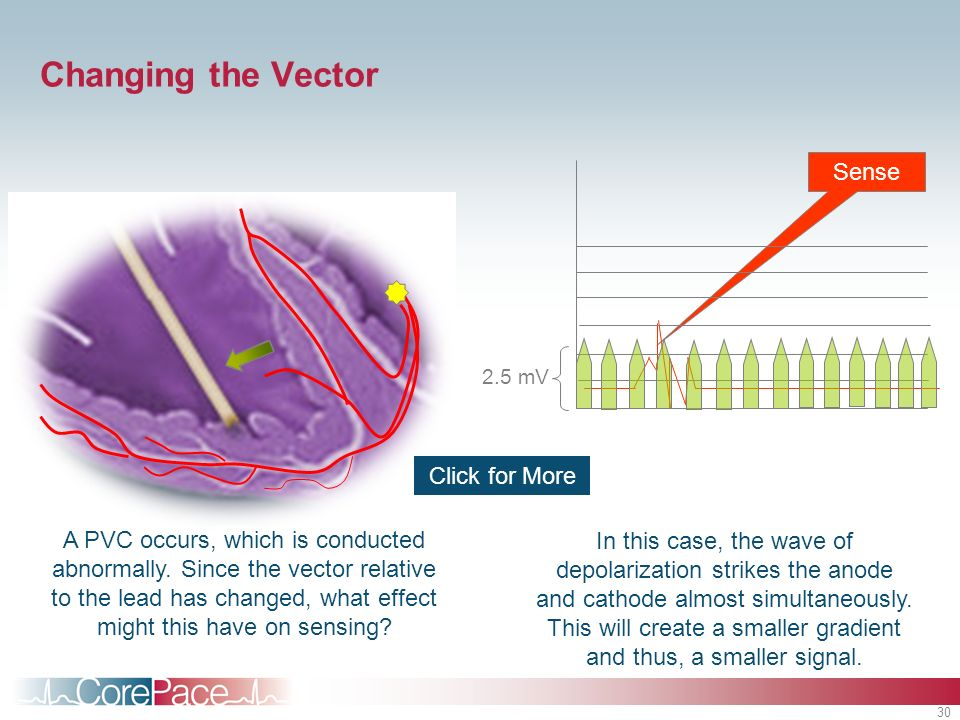 Changing the Vector Sense Click for More