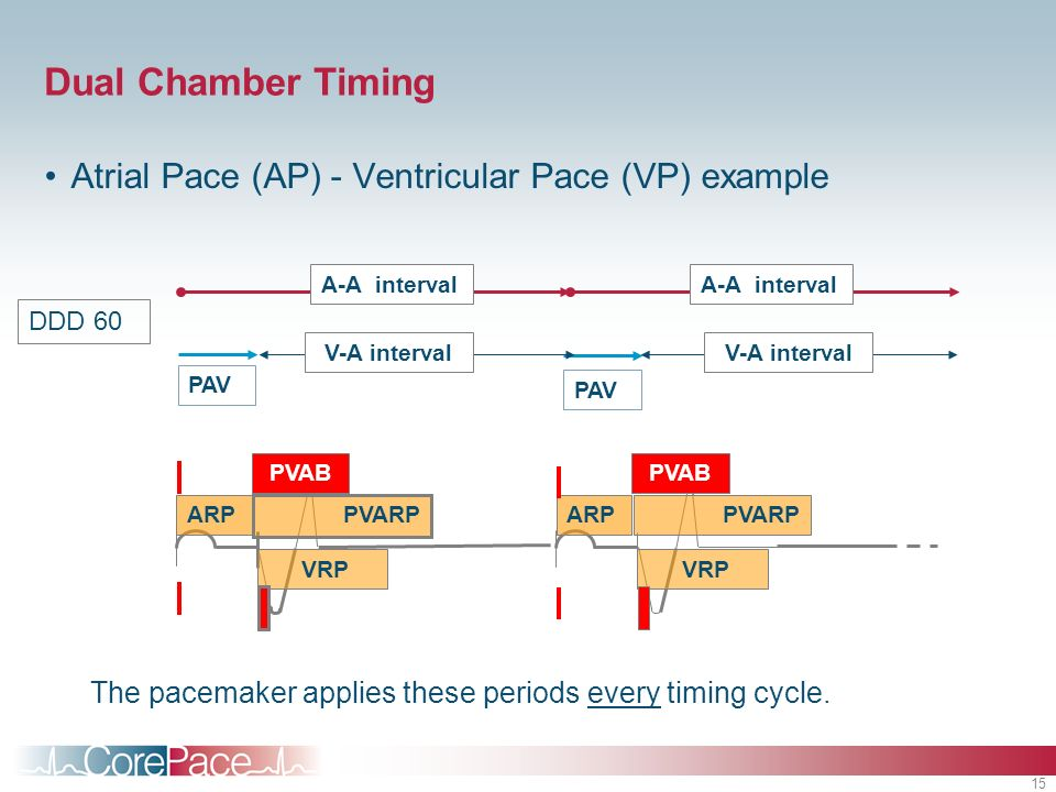 Dual Chamber Timing Atrial Pace (AP) - Ventricular Pace (VP) example