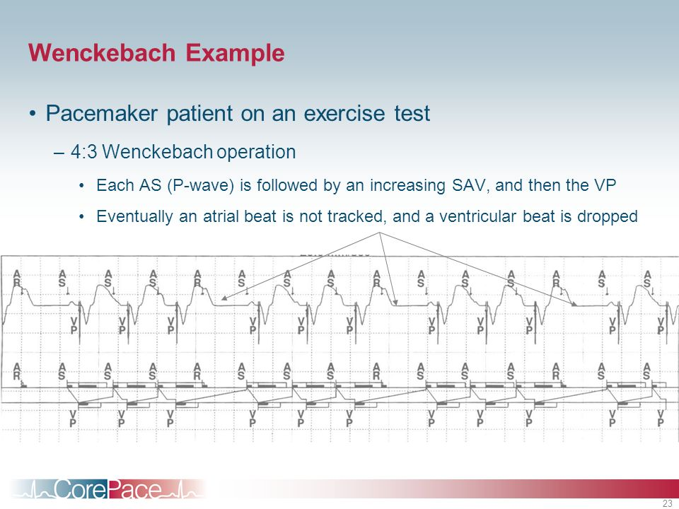 Wenckebach Example Pacemaker patient on an exercise test