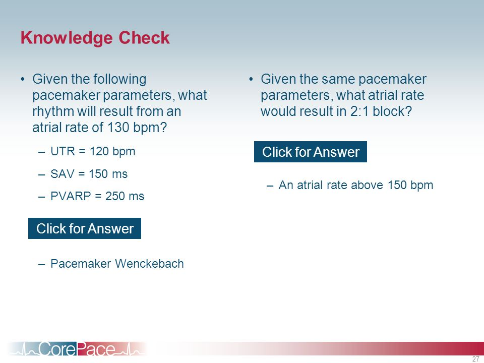 Knowledge Check Given the following pacemaker parameters, what rhythm will result from an atrial rate of 130 bpm