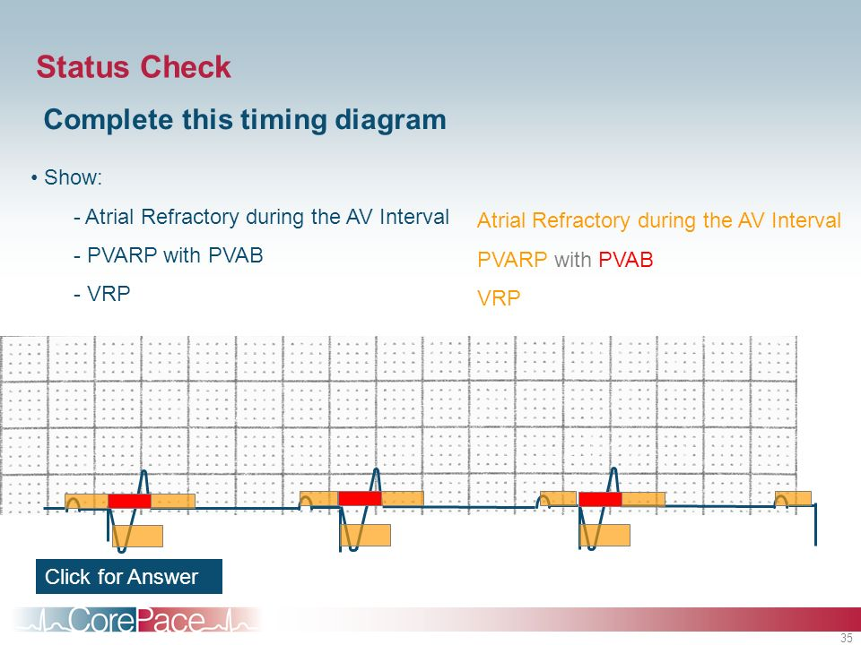 Status Check Complete this timing diagram Show: