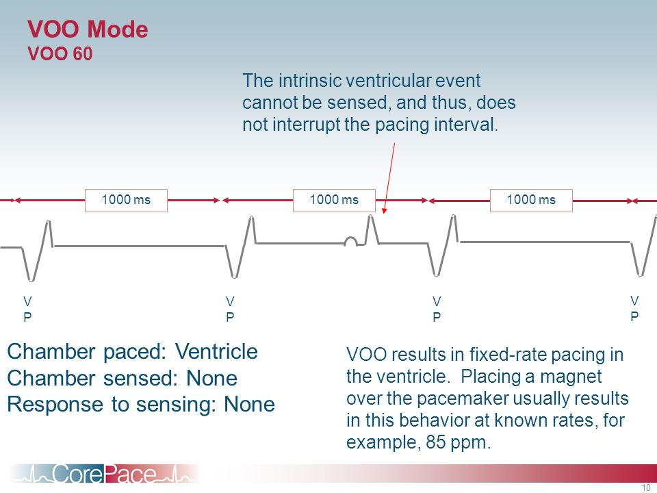 VOO Mode VOO 60 The intrinsic ventricular event cannot be sensed, and thus, does not interrupt the pacing interval.