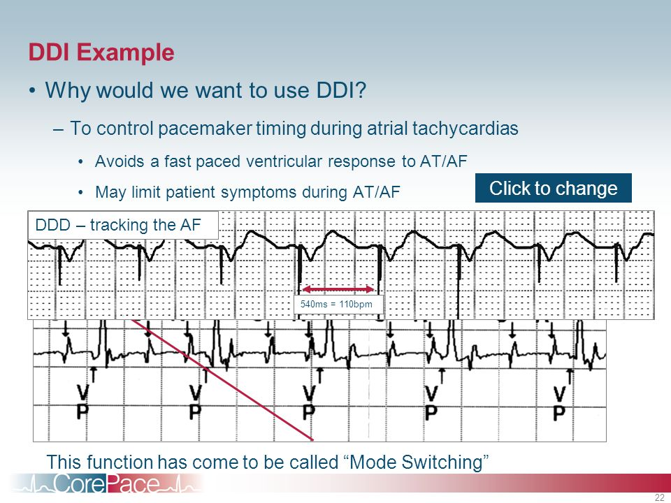 DDI Example Why would we want to use DDI