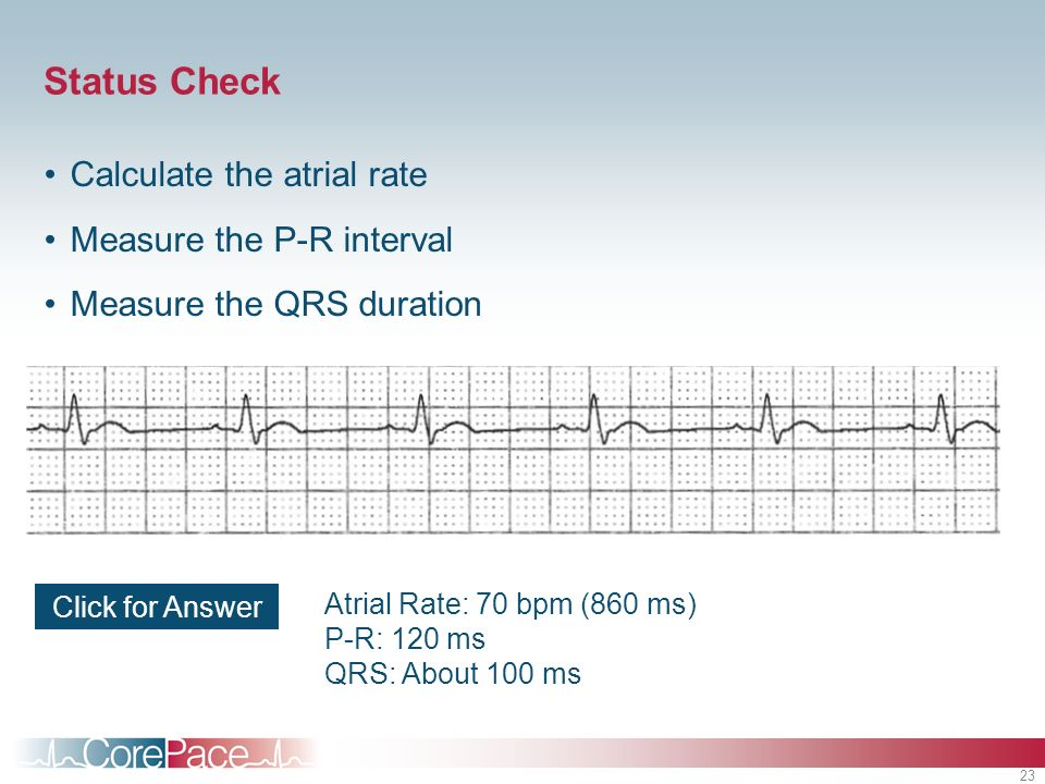 Status Check Calculate the atrial rate Measure the P-R interval