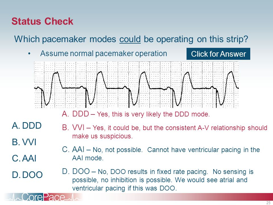 Status Check Which pacemaker modes could be operating on this strip