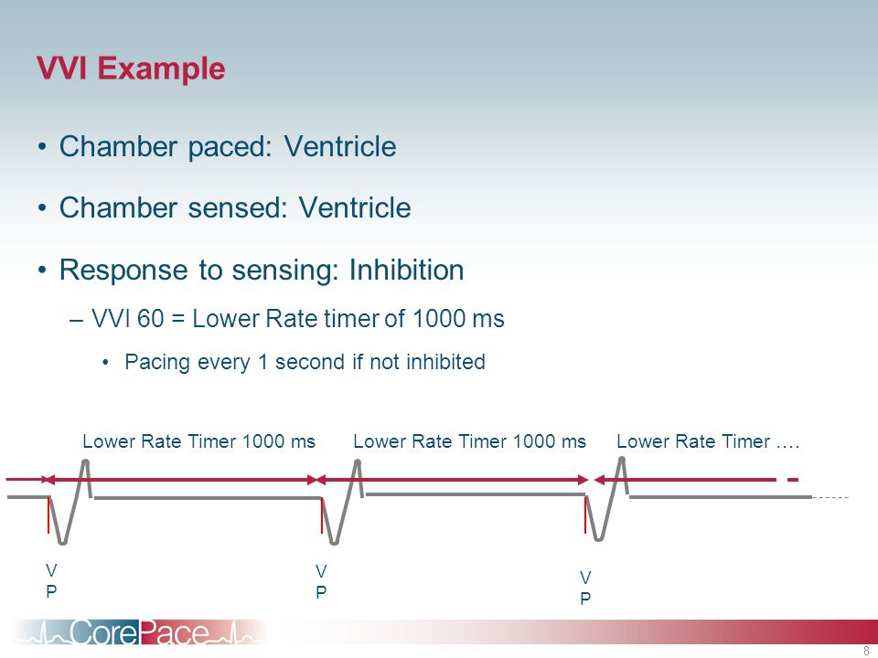 VVI Example Chamber paced: Ventricle Chamber sensed: Ventricle