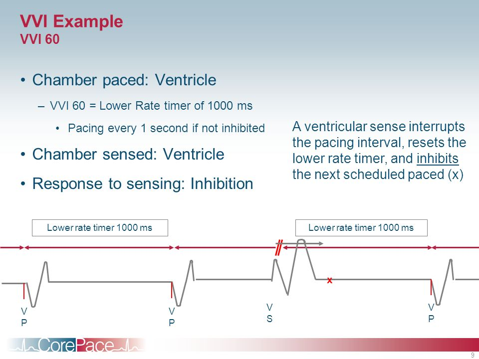 VVI Example VVI 60 Chamber paced: Ventricle Chamber sensed: Ventricle