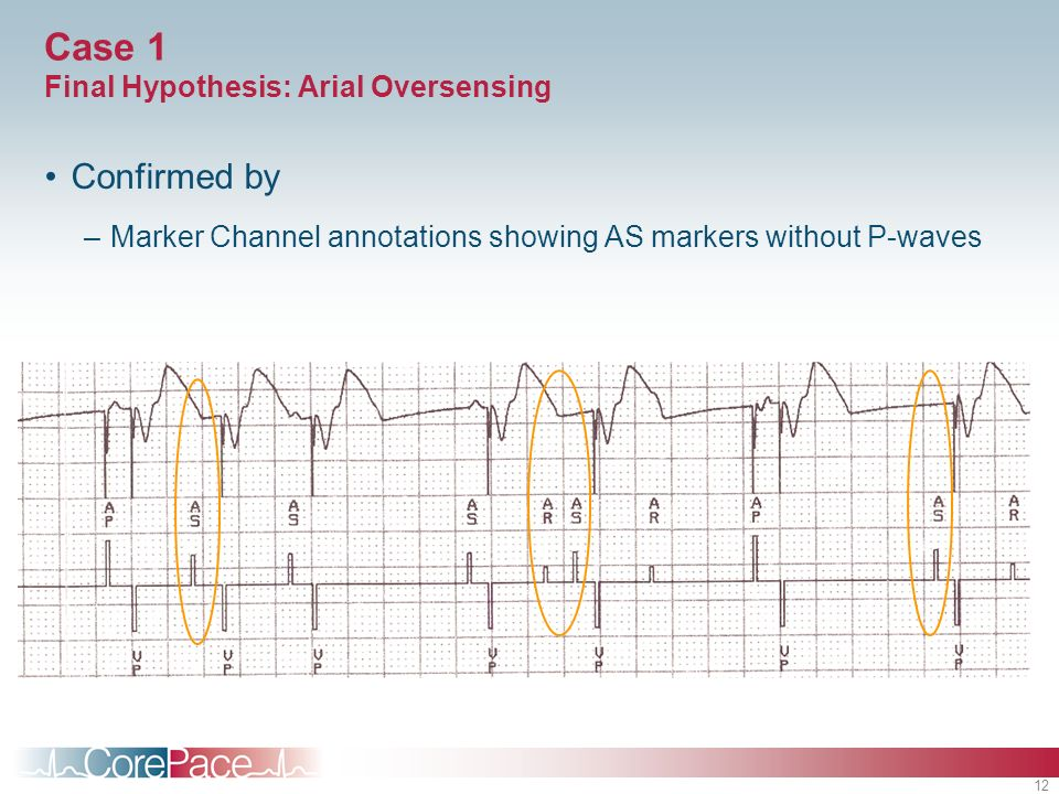 Case 1 Final Hypothesis: Arial Oversensing