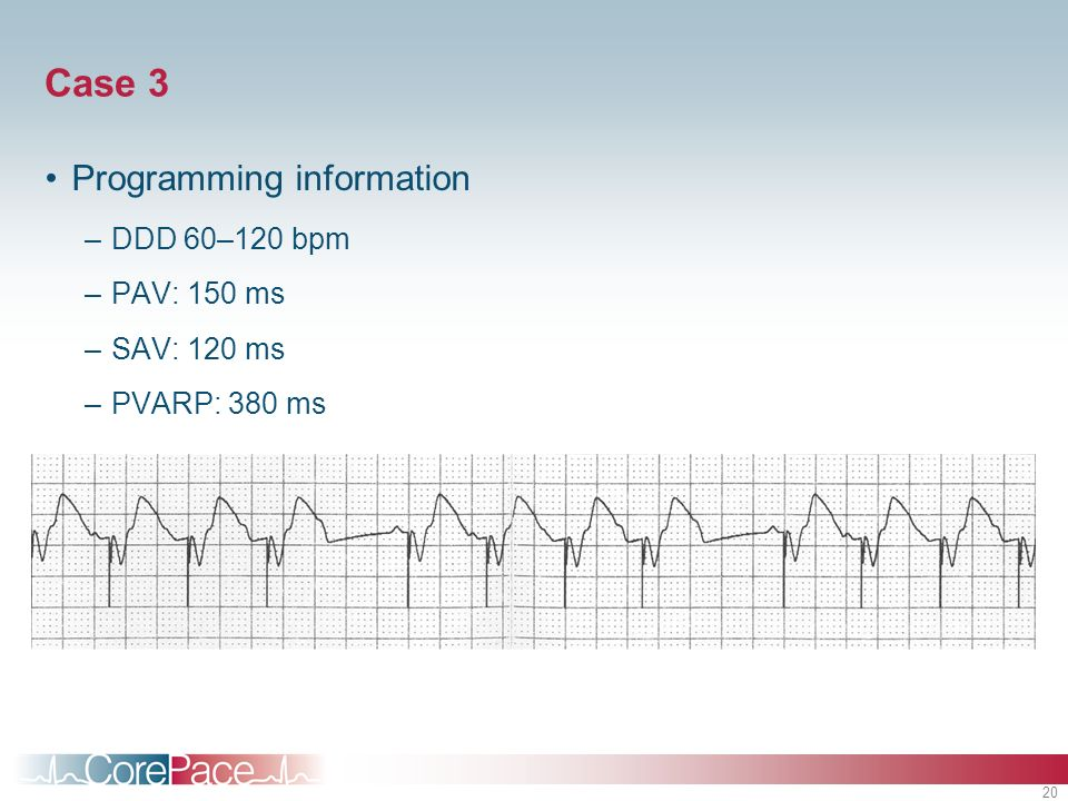 Case 3 Programming information DDD 60–120 bpm PAV: 150 ms SAV: 120 ms