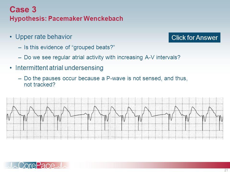 Case 3 Hypothesis: Pacemaker Wenckebach