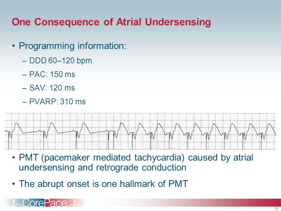 One Consequence of Atrial Undersensing
