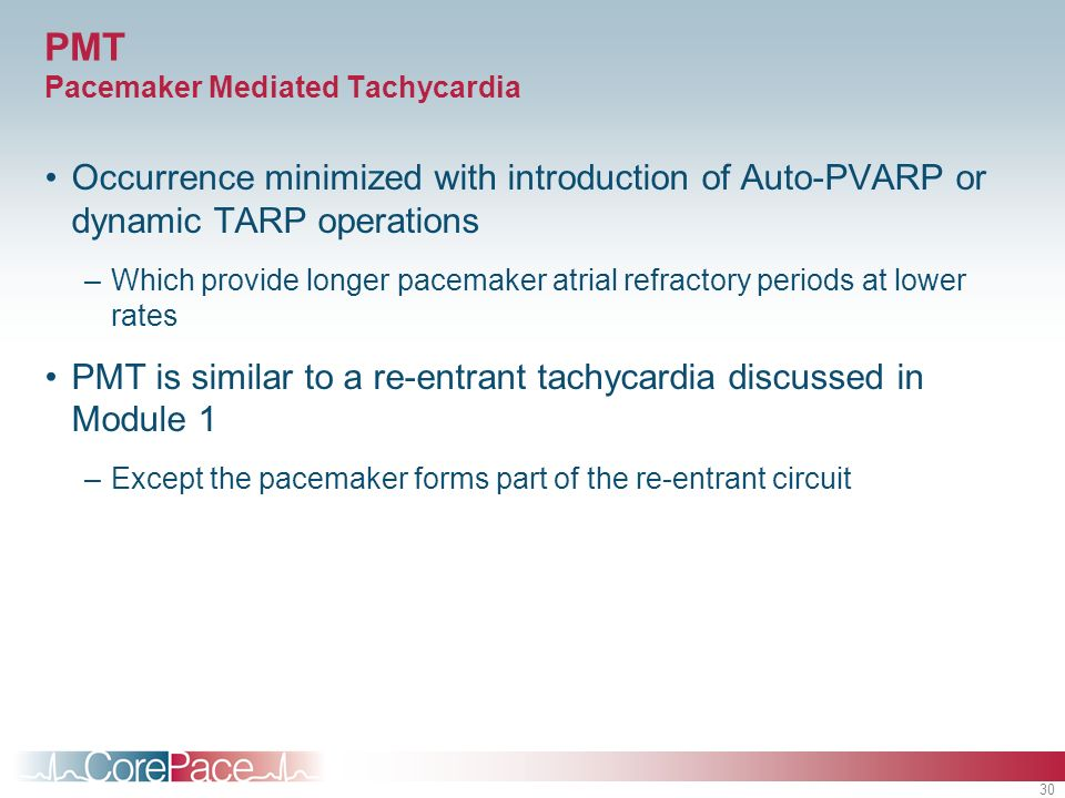 PMT Pacemaker Mediated Tachycardia