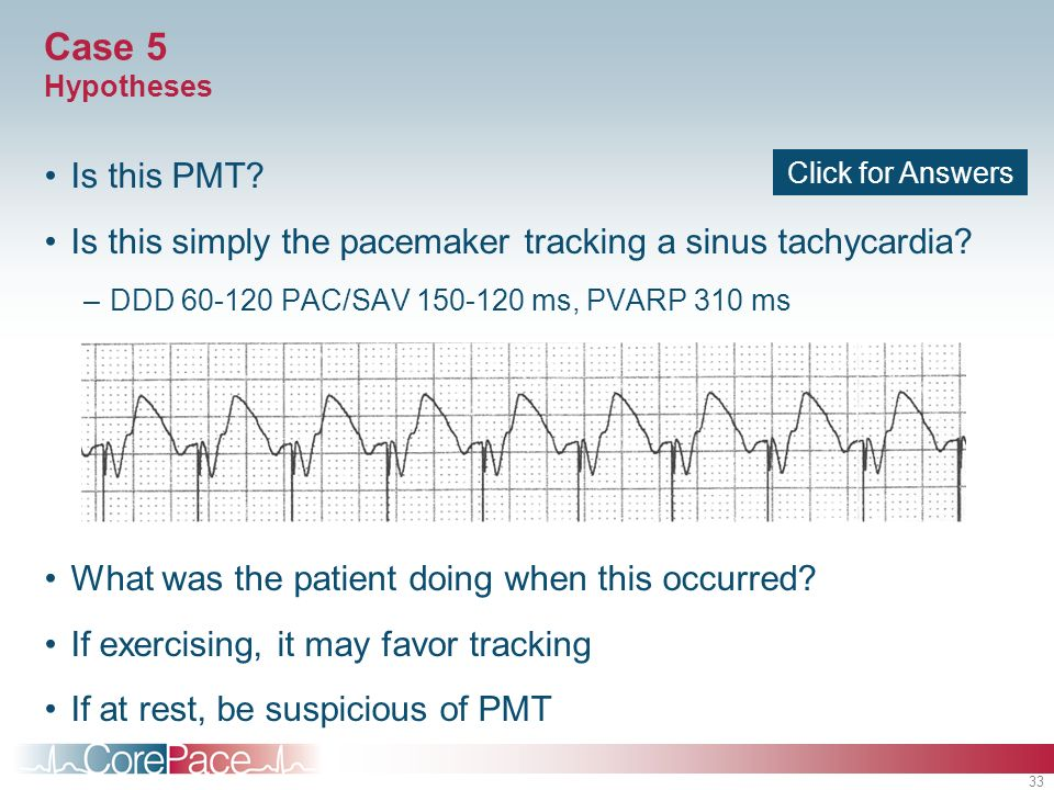 Case 5 Hypotheses Is this PMT