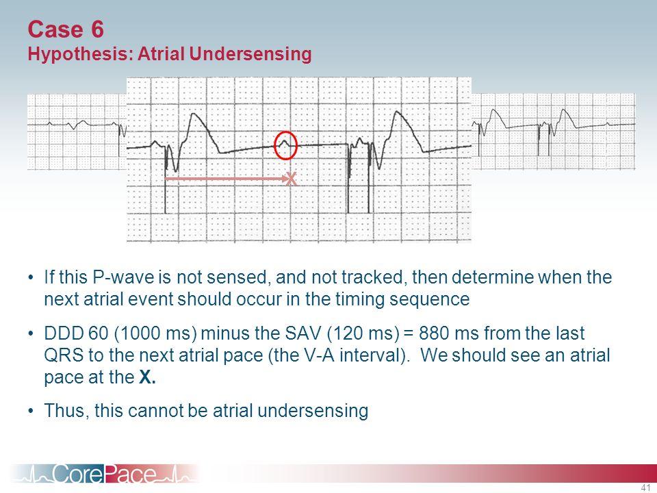 Case 6 Hypothesis: Atrial Undersensing