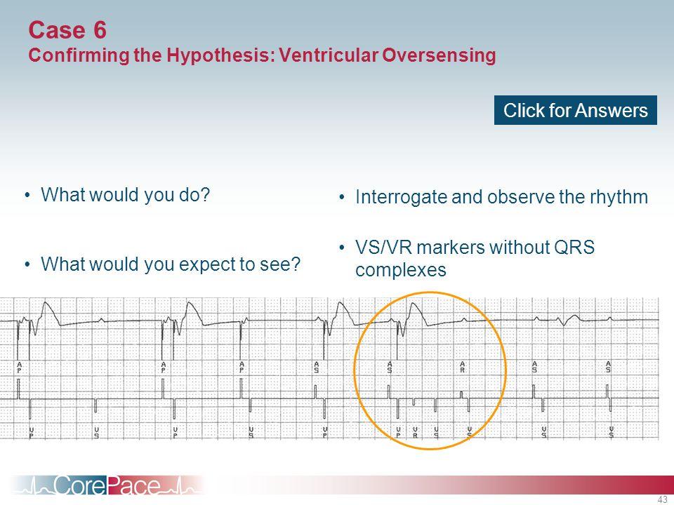 Case 6 Confirming the Hypothesis: Ventricular Oversensing