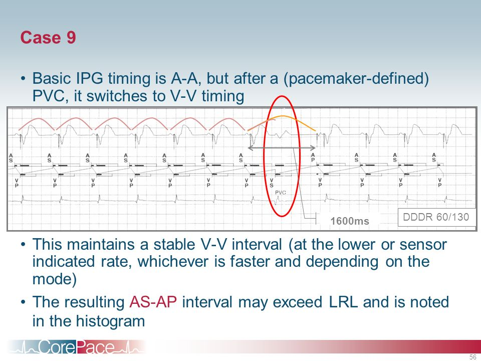 Case 9 Basic IPG timing is A-A, but after a (pacemaker-defined) PVC, it switches to V-V timing.