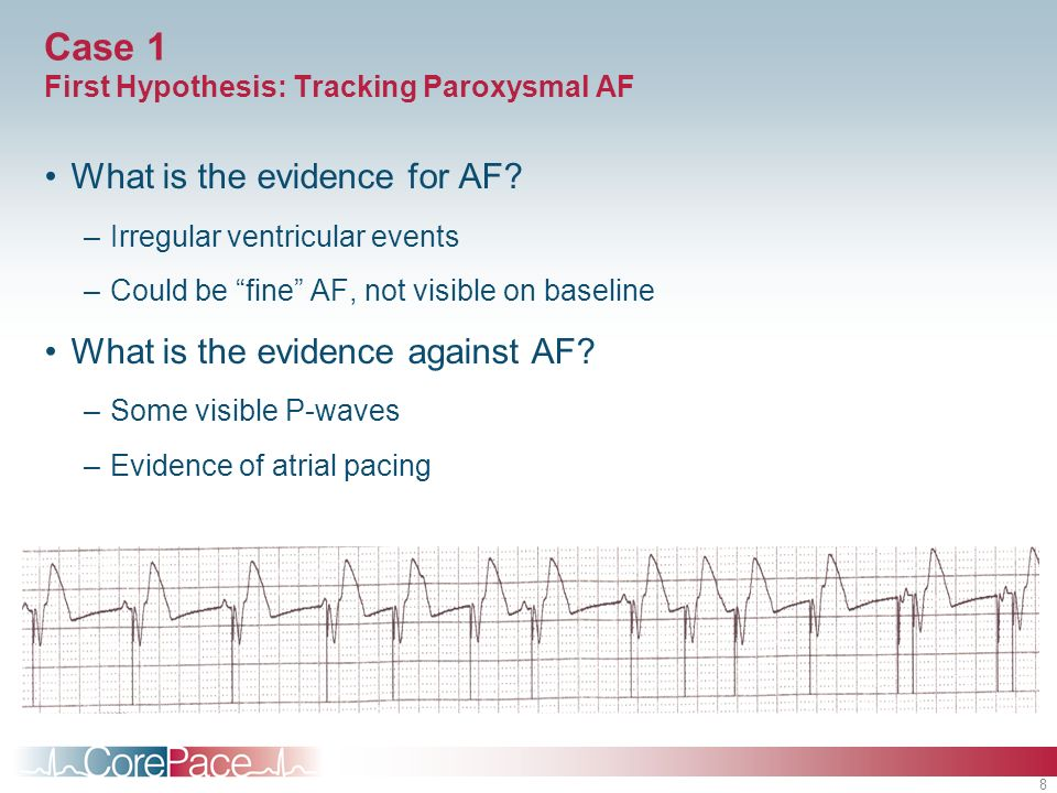 Case 1 First Hypothesis: Tracking Paroxysmal AF