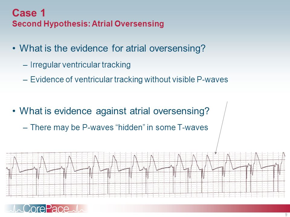 Case 1 Second Hypothesis: Atrial Oversensing