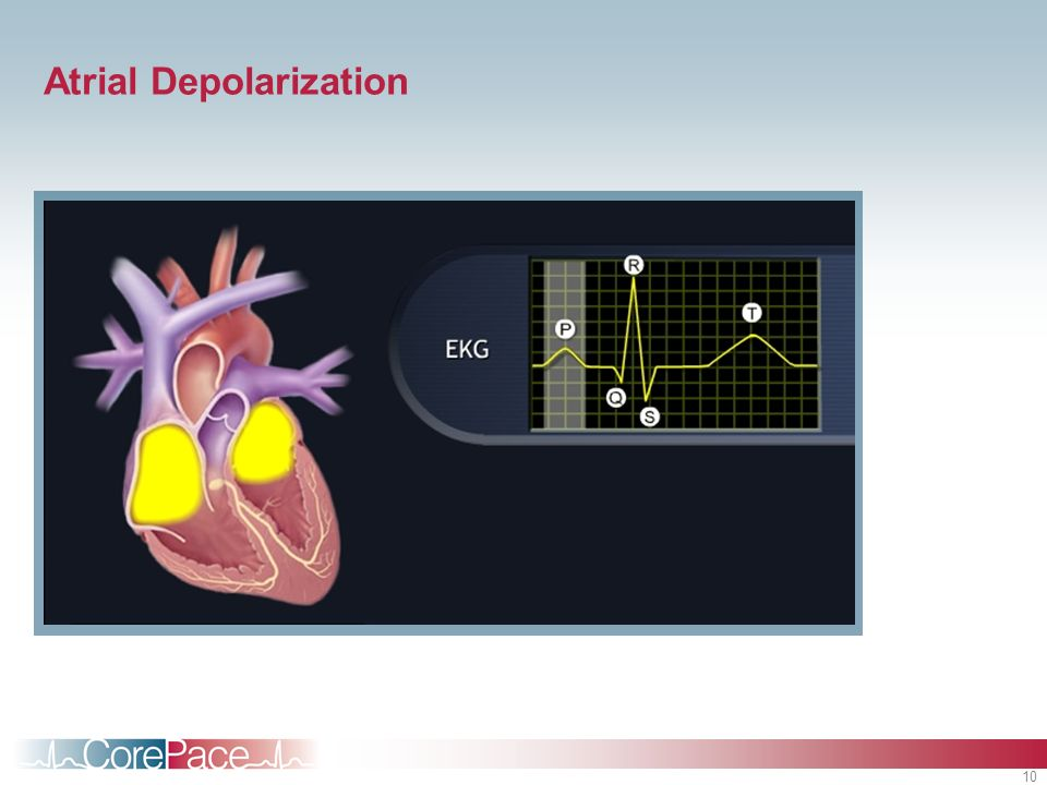 Atrial Depolarization