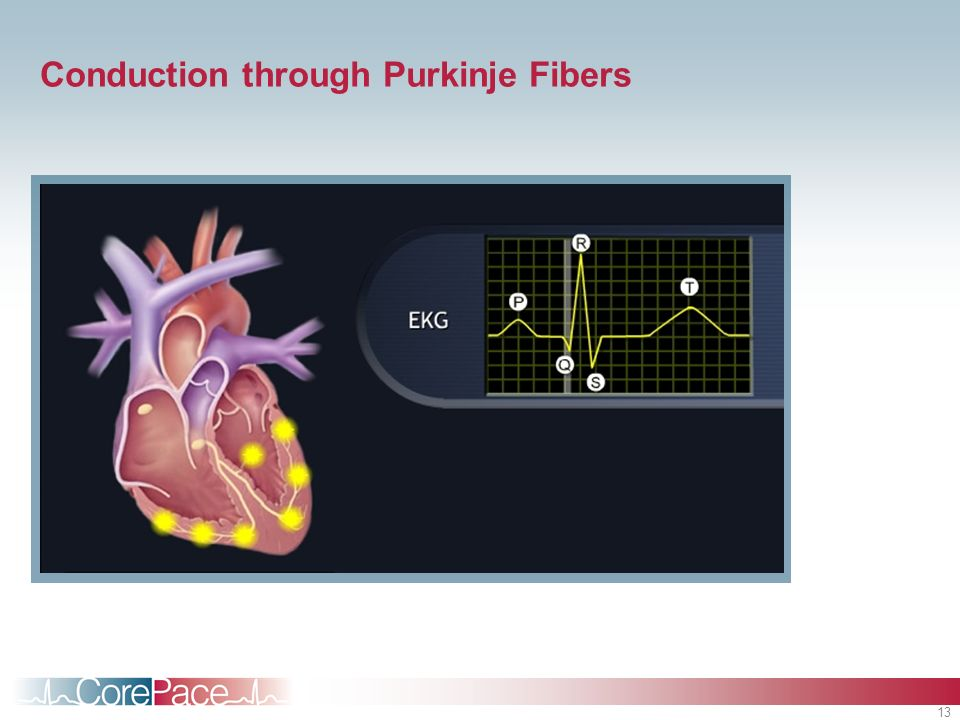 Conduction through Purkinje Fibers