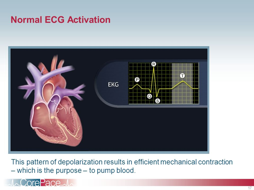 Normal ECG ActivationStudent Notes. Putting it together: An animated view of cardiac conduction and the associated ECG.