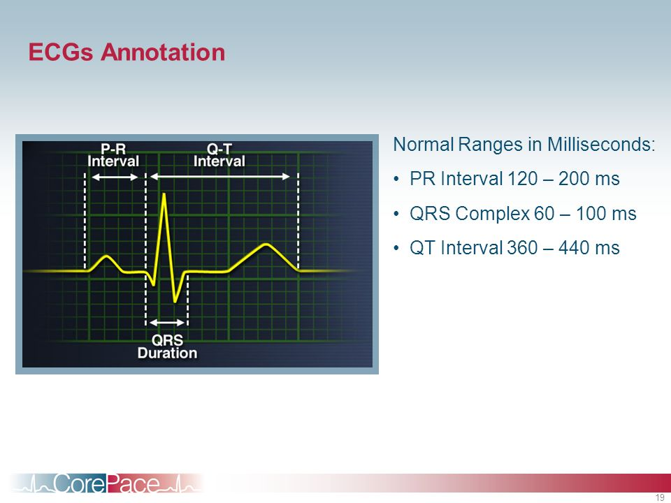 ECGs Annotation Normal Ranges in Milliseconds: