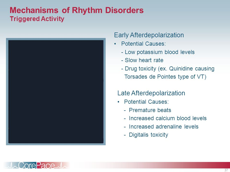 Mechanisms of Rhythm Disorders Triggered Activity
