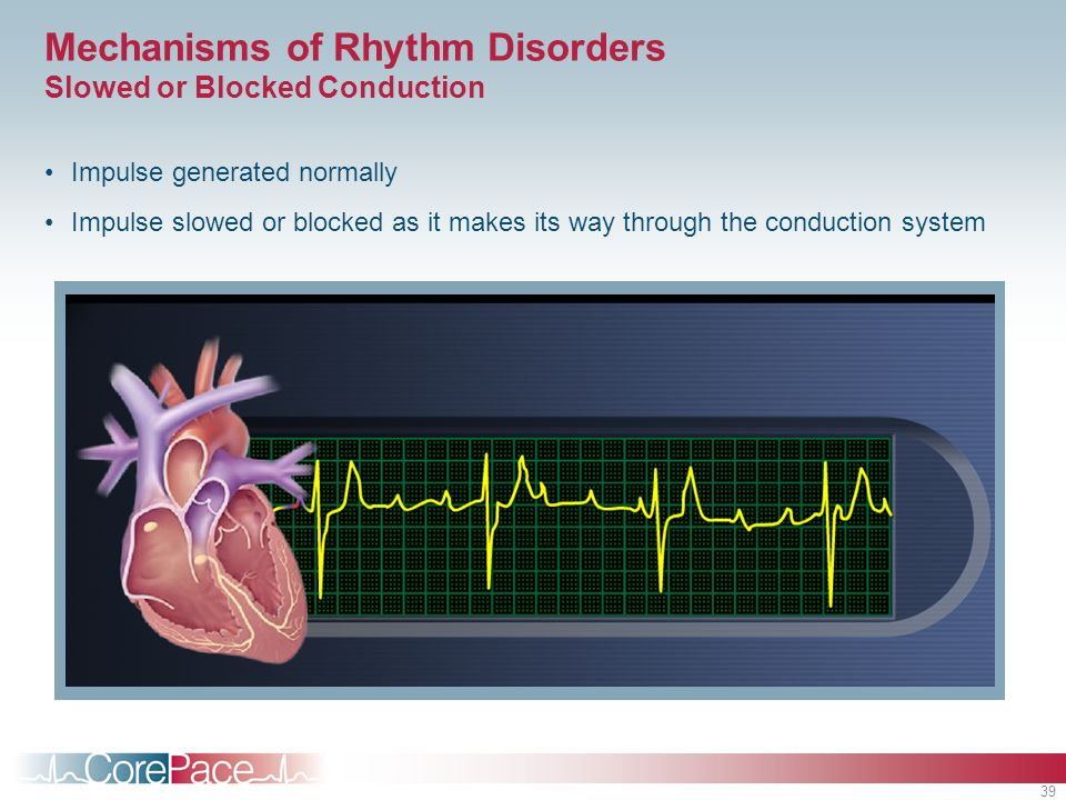 Mechanisms of Rhythm Disorders Slowed or Blocked Conduction