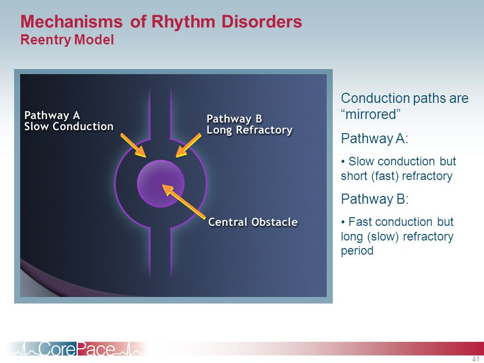 Mechanisms of Rhythm Disorders Reentry Model