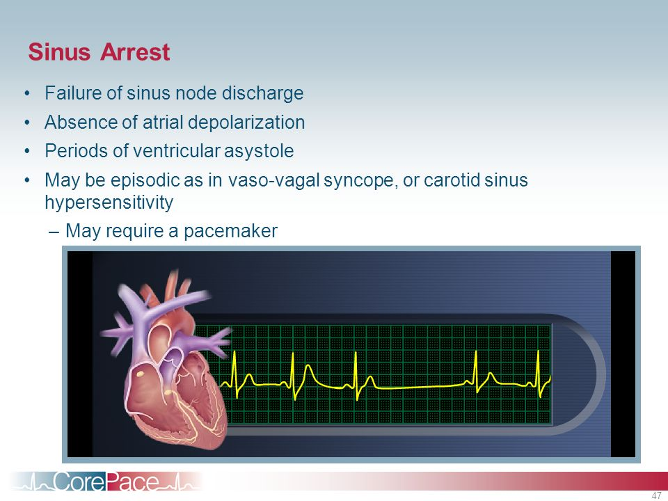 Sinus Arrest Failure of sinus node discharge