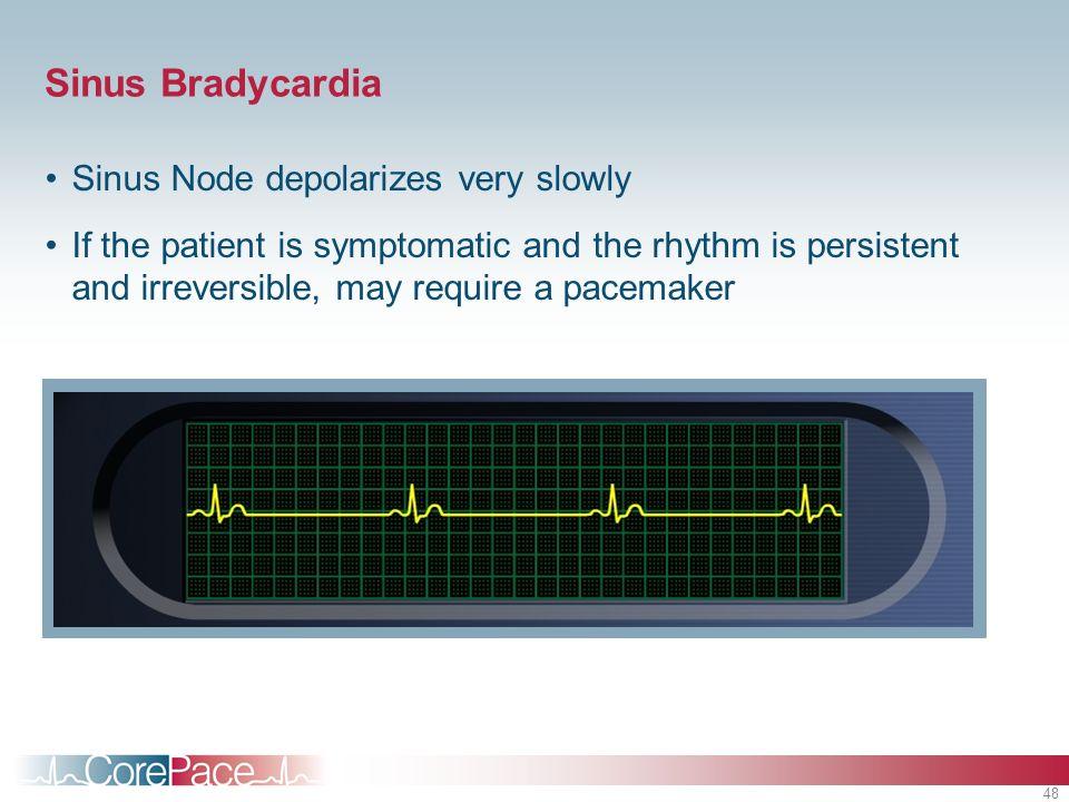 Sinus Bradycardia Sinus Node depolarizes very slowly