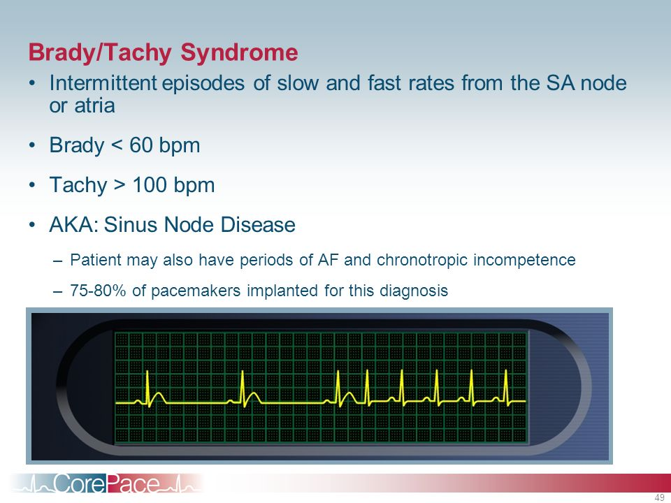 Brady/Tachy SyndromeIntermittent episodes of slow and fast rates from the SA node or atria. Brady < 60 bpm.