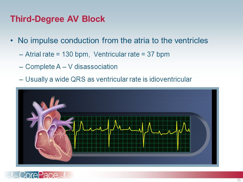 Third-Degree AV BlockNo impulse conduction from the atria to the ventricles. Atrial rate = 130 bpm, Ventricular rate = 37 bpm.