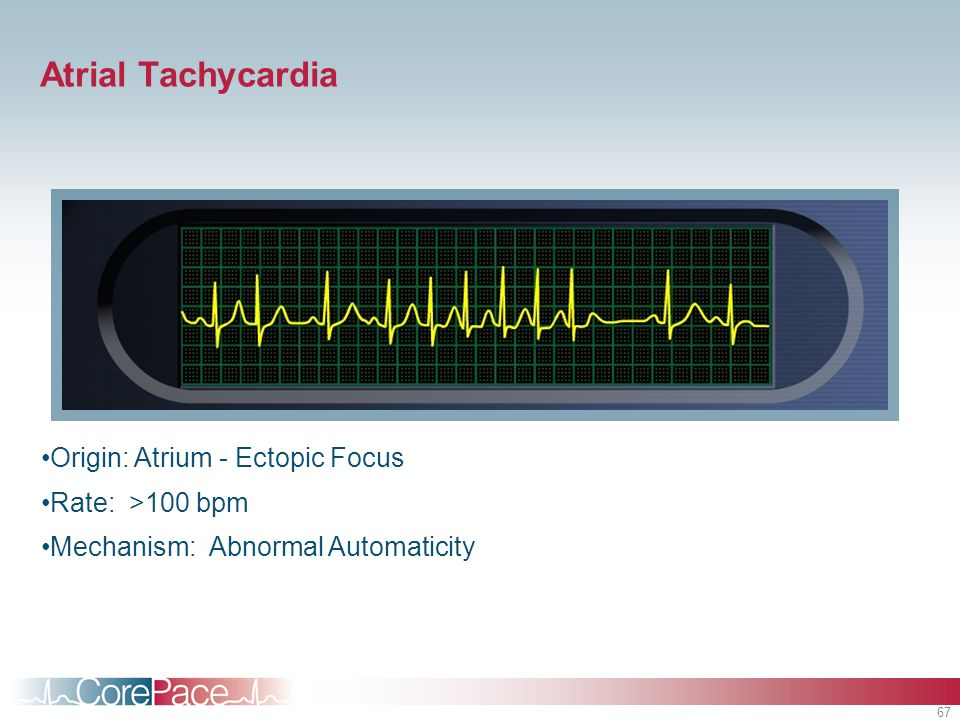 Atrial Tachycardia Origin: Atrium - Ectopic Focus Rate: >100 bpm