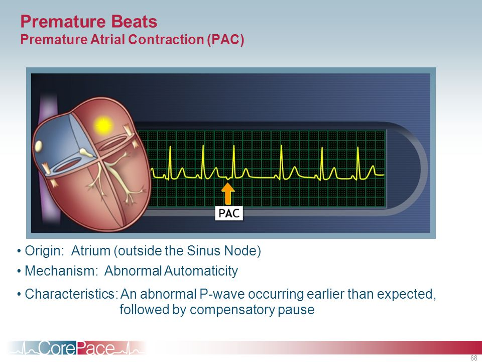 Premature Beats Premature Atrial Contraction (PAC)