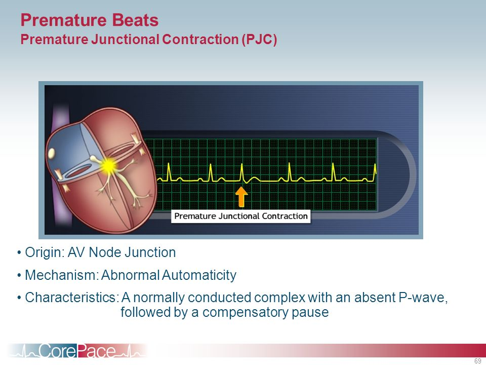 Premature Beats Premature Junctional Contraction (PJC)