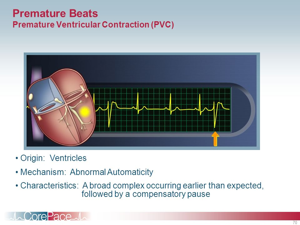 Premature Beats Premature Ventricular Contraction (PVC)