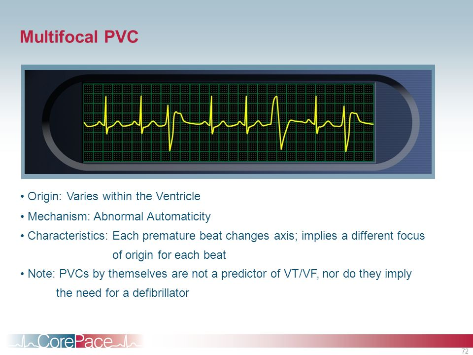 Multifocal PVC Origin: Varies within the Ventricle