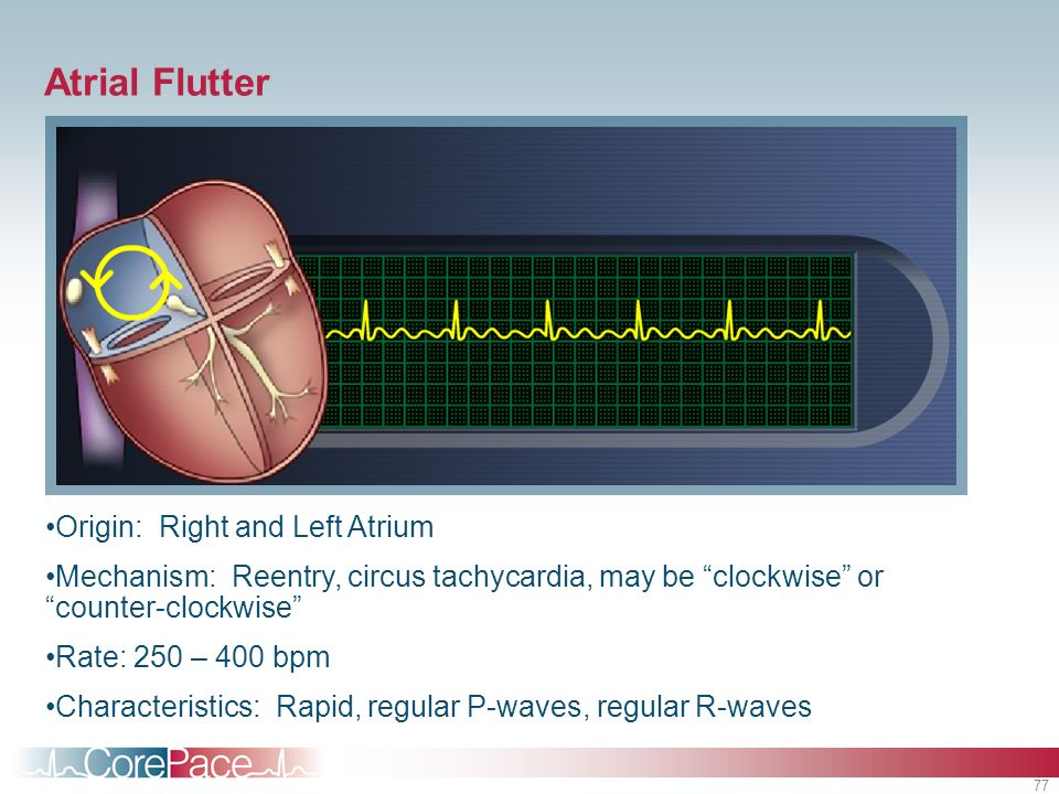 Atrial Flutter Origin: Right and Left Atrium