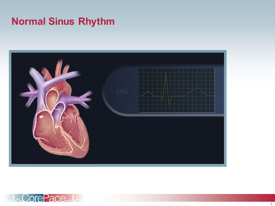 Normal Sinus Rhythm Student Notes