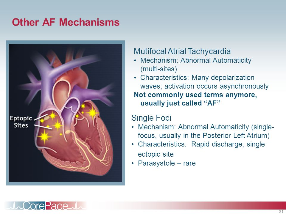 Other AF Mechanisms Mutifocal Atrial Tachycardia Single Foci