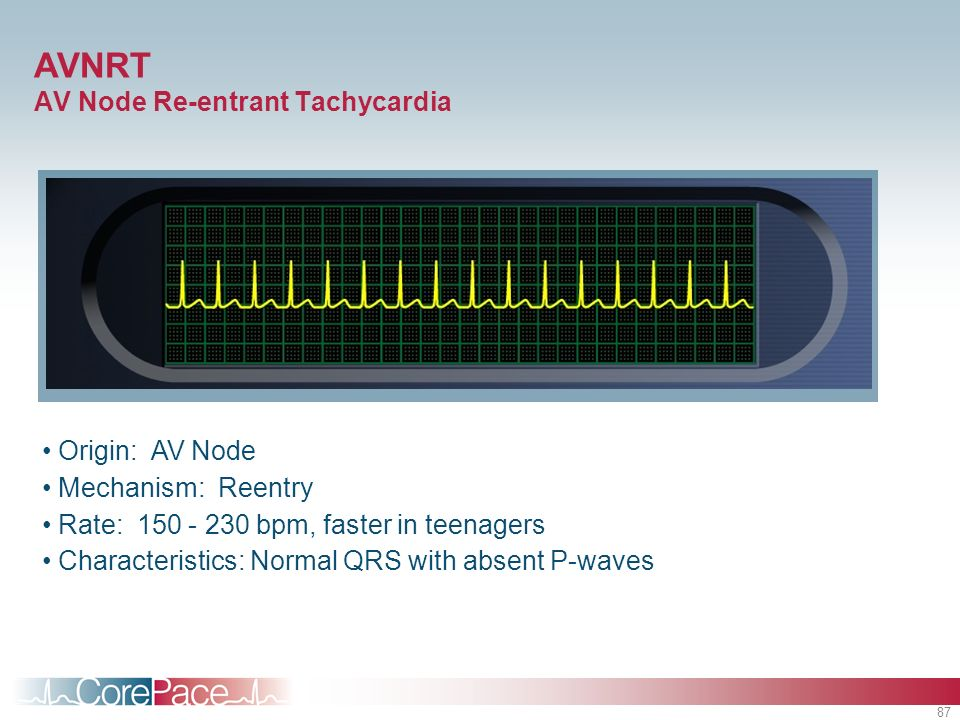 AVNRT AV Node Re-entrant Tachycardia