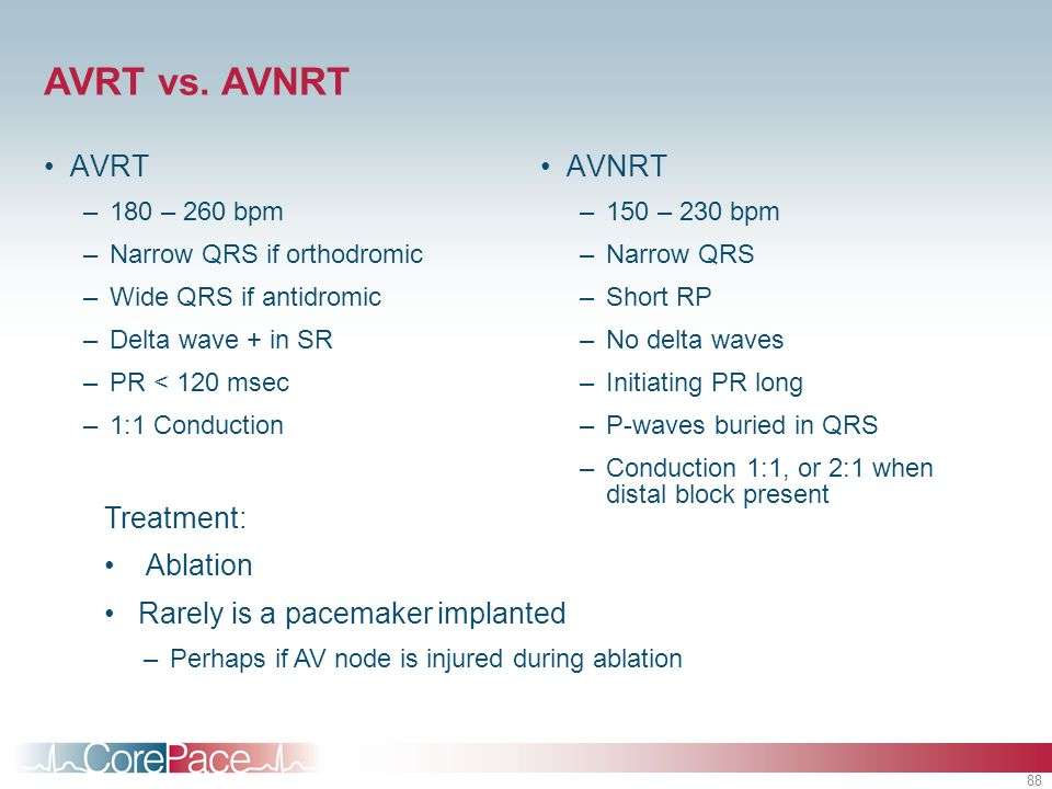 AVRT vs. AVNRT AVRT AVNRT Treatment: Ablation