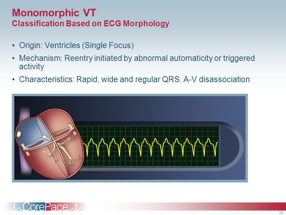 Monomorphic VT Classification Based on ECG Morphology