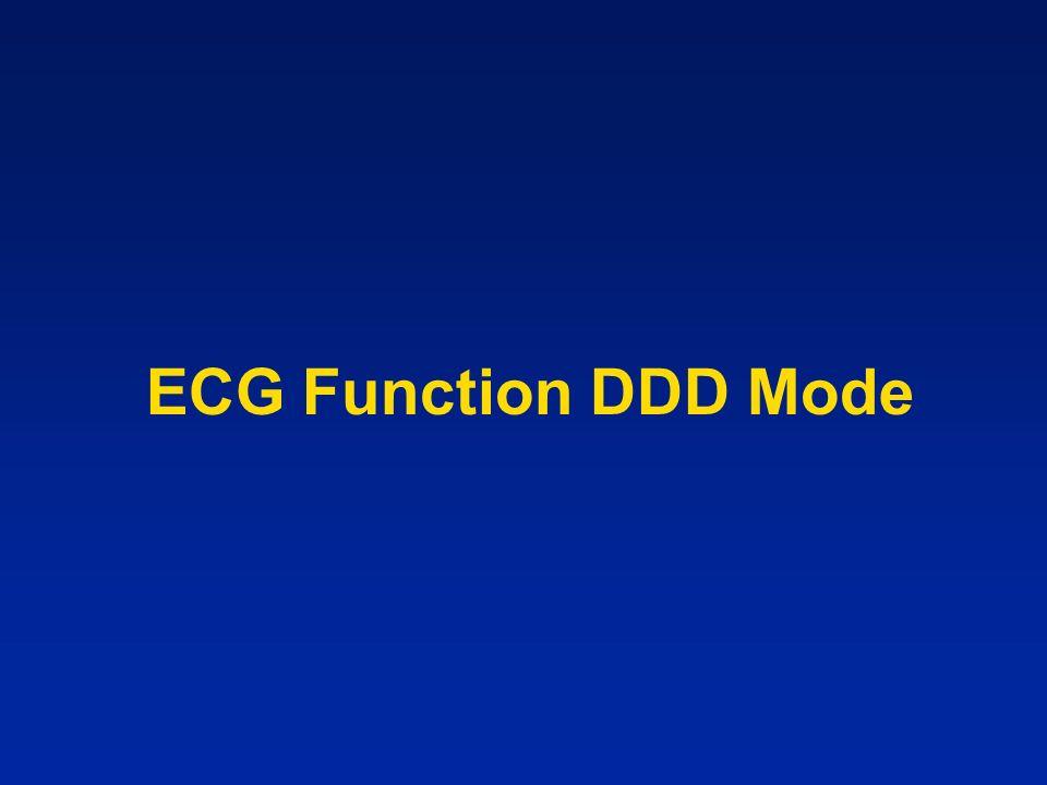 ECG Function DDD Mode
