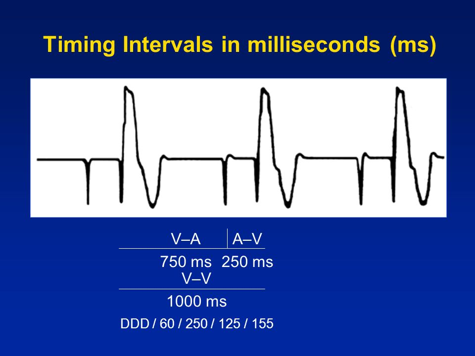 Timing Intervals in milliseconds (ms)