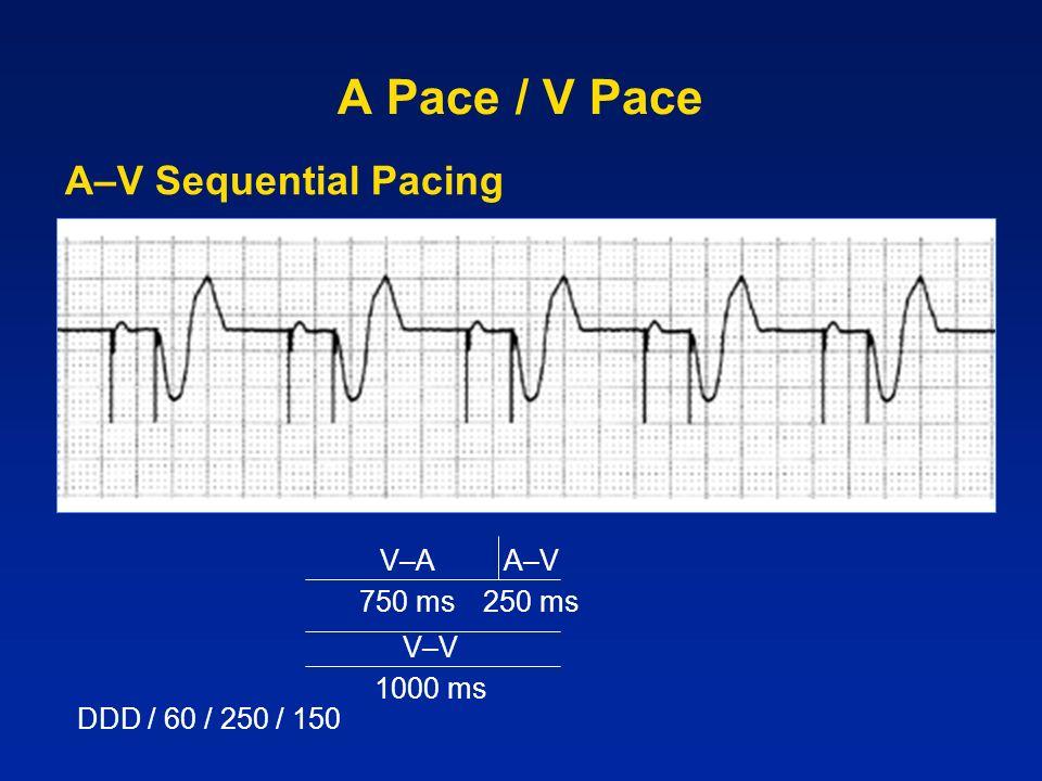 A Pace / V Pace A–V Sequential Pacing V–A 750 ms A–V 250 ms V–V