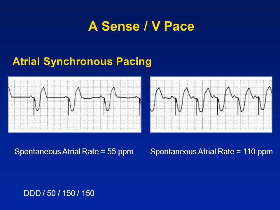 A Sense / V Pace Atrial Synchronous Pacing