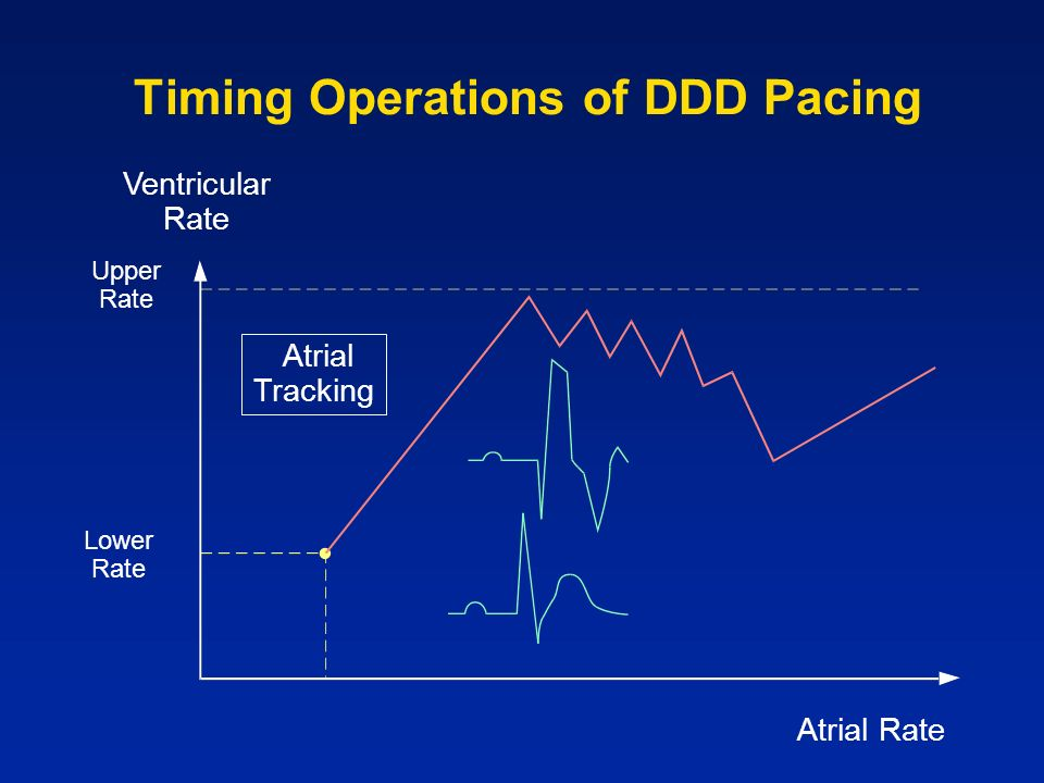Timing Operations of DDD Pacing